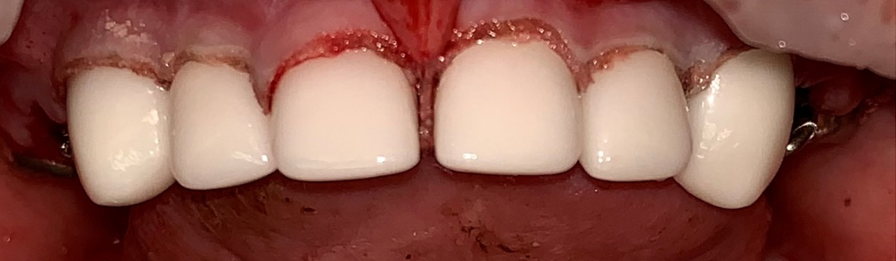 After Silver Diamine Fluoride Treatment